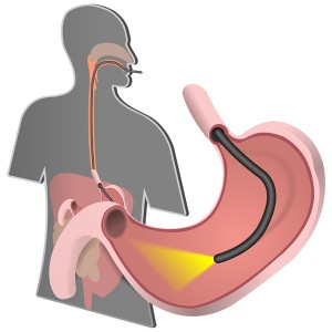 An examination of the lining of the esophagus, stomach, and upper duodenum with a small camera (flexible endoscope) which is inserted down the throat
